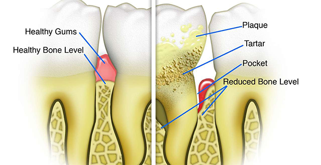 Gum Disease (Periodontal Disease)